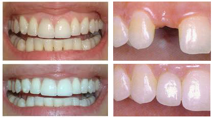 Full Arch Implant Denture Smile View After